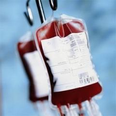25 сентября первая в мире операция по переливанию крови от человека к человеку