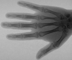 8 ноября были открыты «рентгеновские лучи»