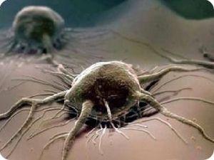 Ученые определили 12 продуктов, защищающих от онкологических болезней