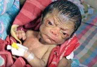 В Бангладеш родился мальчик, который выглядит как 80-летний старик