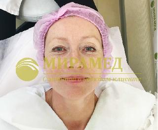 МИРАМЕД Уссурийск мезотерапия лица